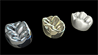 Crown Material Comparison